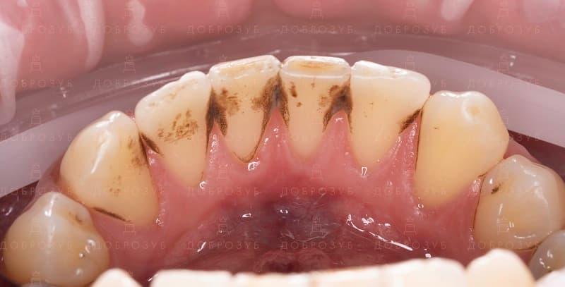 Професійна чистка зубів Київ | Фото 1 - Стоматологія Доброзуб