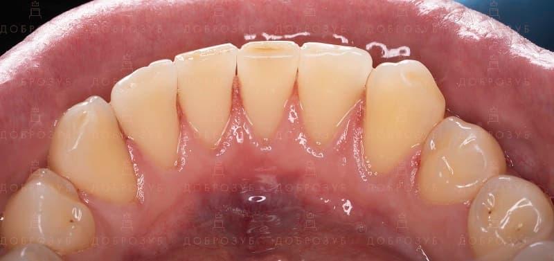 Професійна чистка зубів Київ | Фото 2 - Стоматологія Доброзуб