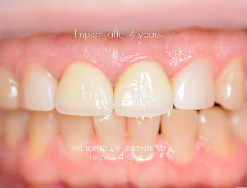 Імплантація зубів Київ | Фото 12 - Стоматологія Доброзуб