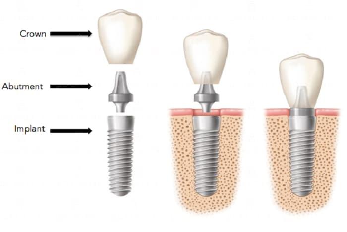 Имплантация зубов | Фото 13 - Стоматология Доброзуб