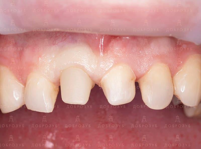Имплантация зубов | Фото 2 - Стоматология Доброзуб
