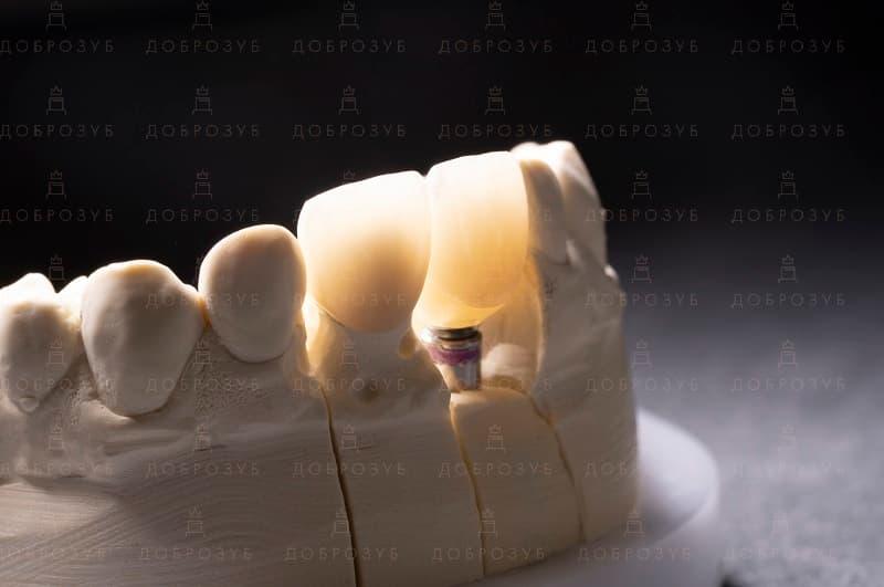 Імплантація зубів Київ | Фото 3 - Стоматологія Доброзуб