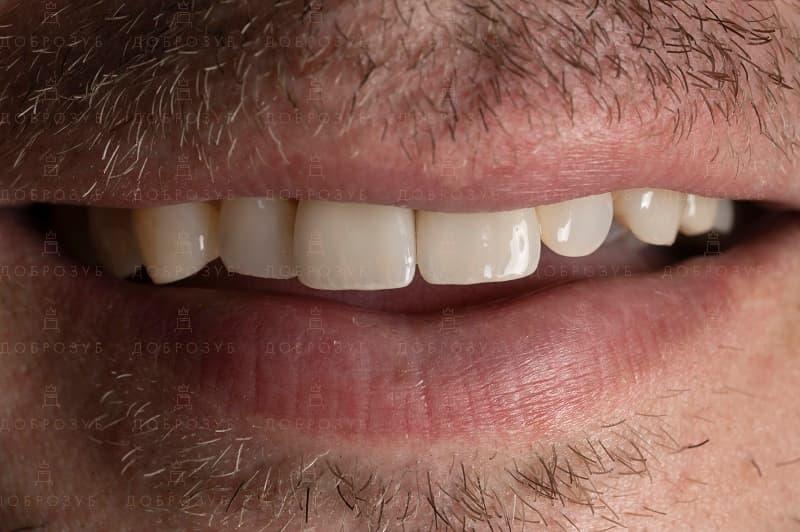Имплантация зубов | Фото 4 - Стоматология Доброзуб