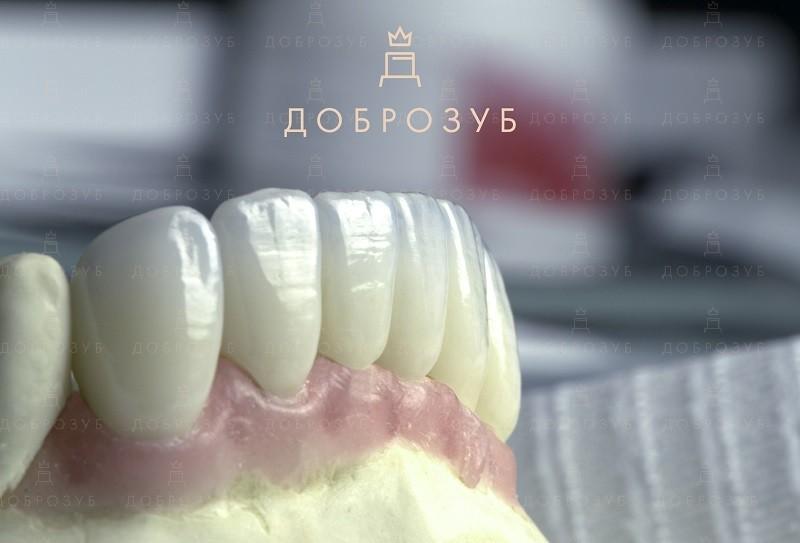 Протезирование зубов Киев | Фото 4 - Стоматология Доброзуб