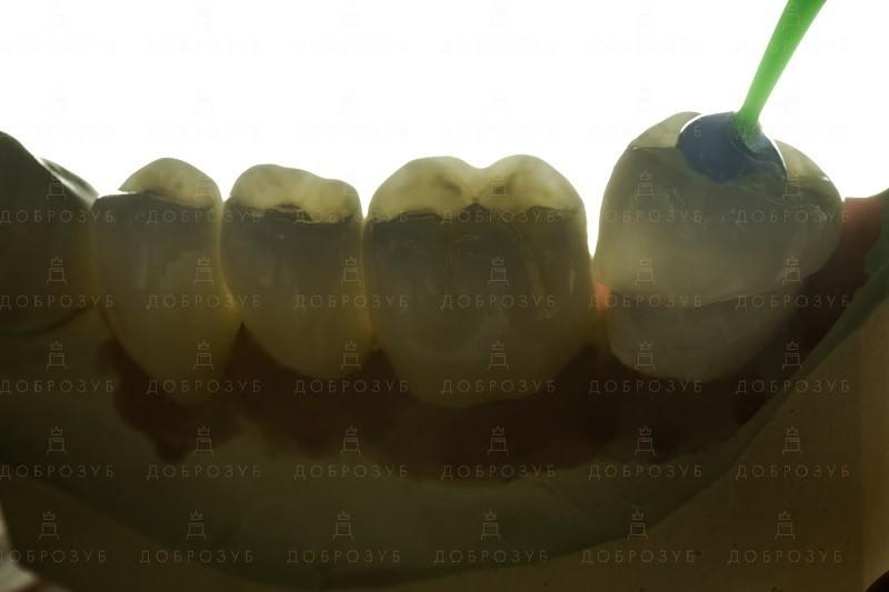 Керамічні коронки | Фото 2 - Стоматологія Доброзуб