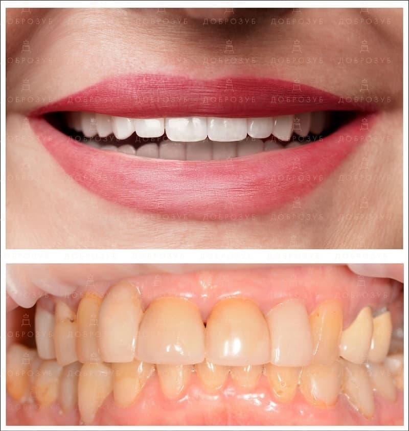 Зубы до и после установки виниров | Фото 3