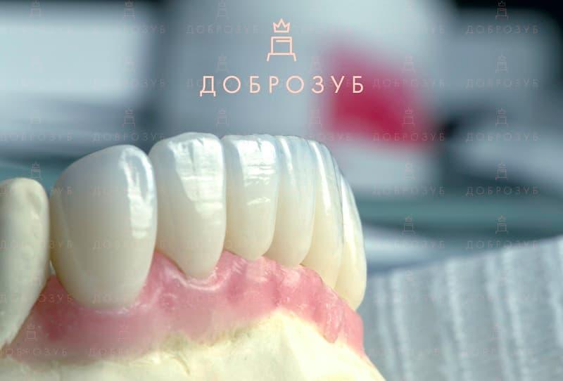 Керамічні коронки | Фото 1 - Стоматологія Доброзуб