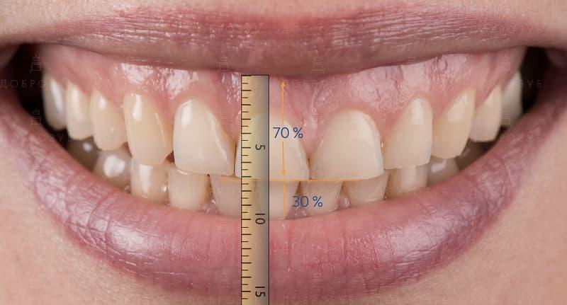 Цифровое моделирование улыбки (компьютерное) | Фото 1 - Стоматология Доброзуб