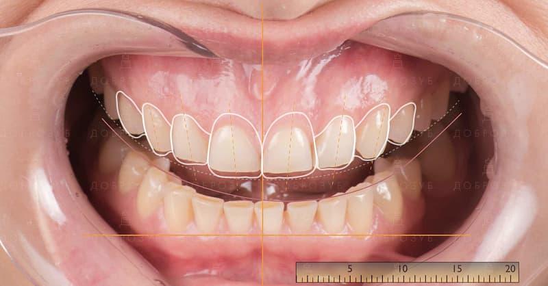 Цифрове моделювання посмішки (комп'ютерне) | Фото 2 - Стоматологія Доброзуб