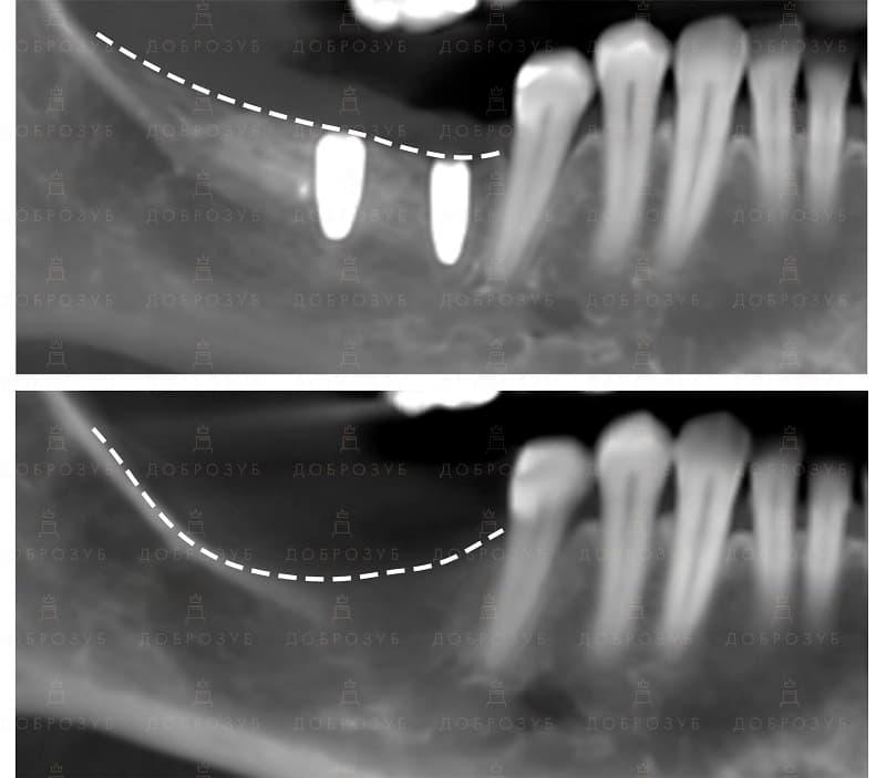 Кісткова пластика | Фото 3 - Стоматологія Доброзуб
