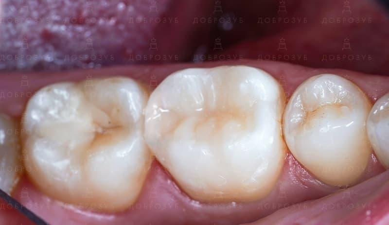 Лечение зубов под микроскопом | Фото 3 - Стоматология Доброзуб