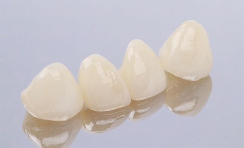 Протезирование зубов Киев | Фото 5 - Стоматология Доброзуб