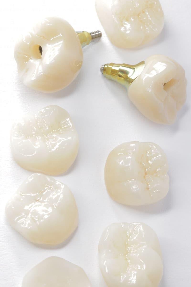 Циркониевые коронки | Фото 2 - Стоматология Доброзуб