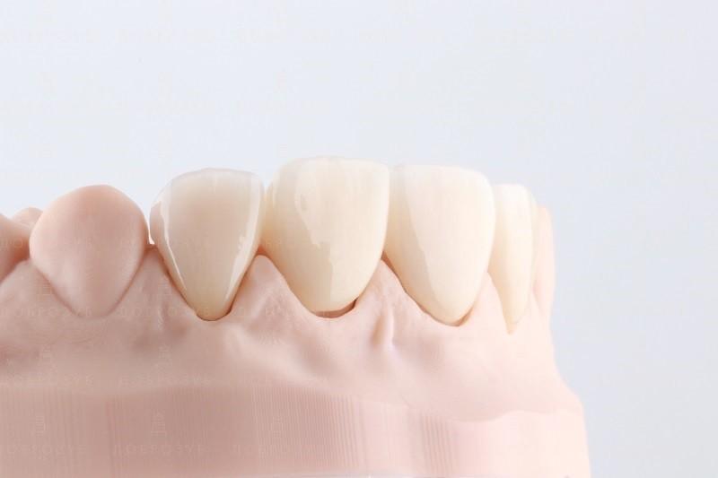Протезирование зубов Киев | Фото 2- Стоматология Доброзуб