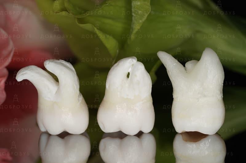 Видалення зуба мудрості Київ | Фото 3 - Стоматологія Доброзуб