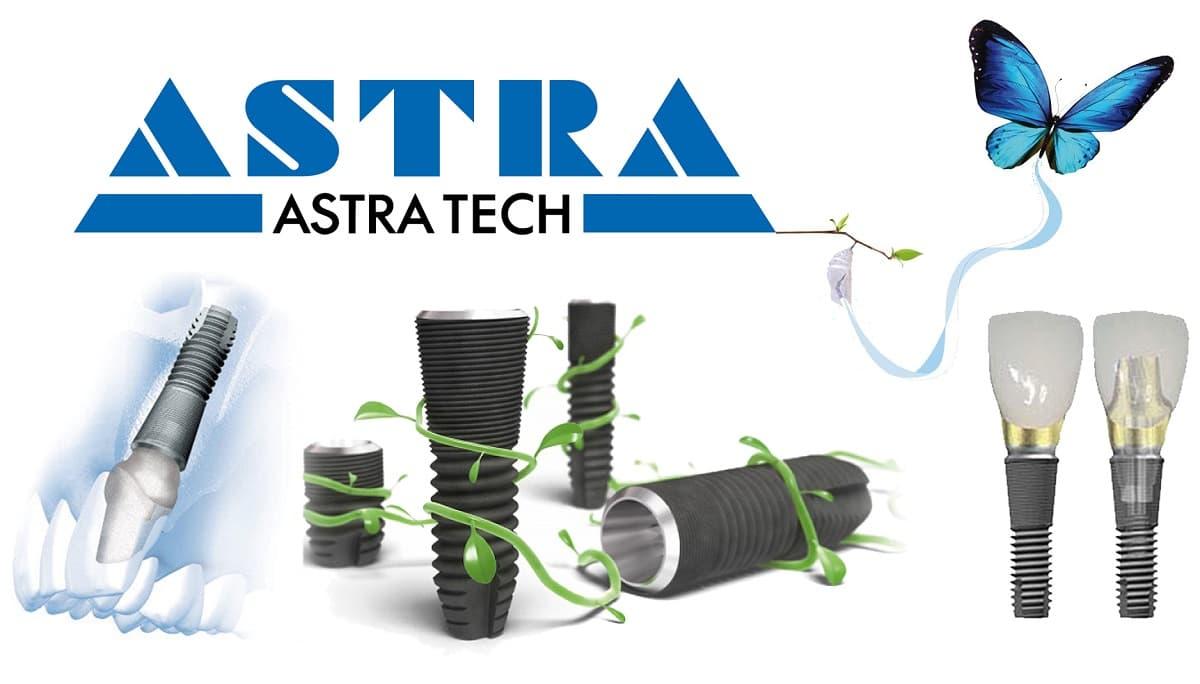 Импланты Astra - Второе место лучших имплантов | Стоматология Доброзуб