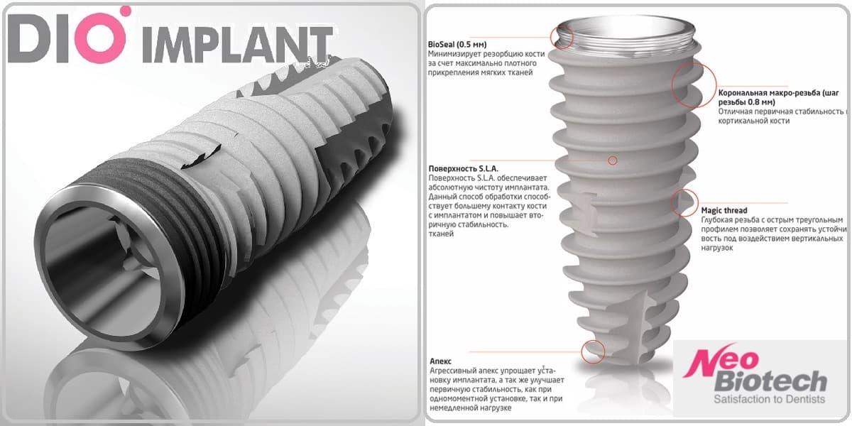 Импланты Dio и Neobiotech - лучшие импланты в бюджетном (недорогие) ценовом диапазоне | Стоматология Доброзуб