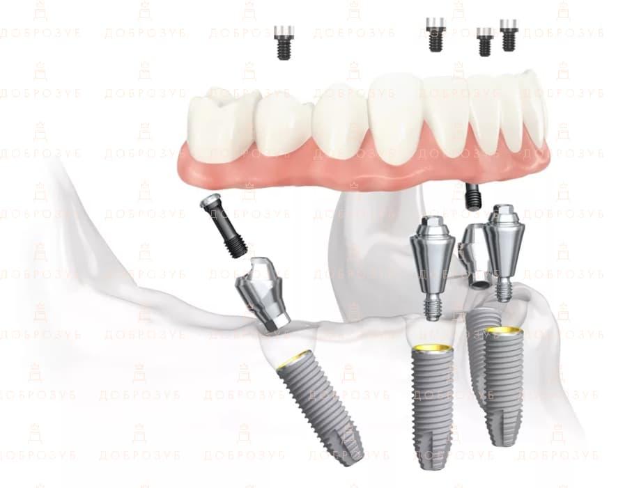 All on 4 | Фото 3 - Стоматологія Доброзуб