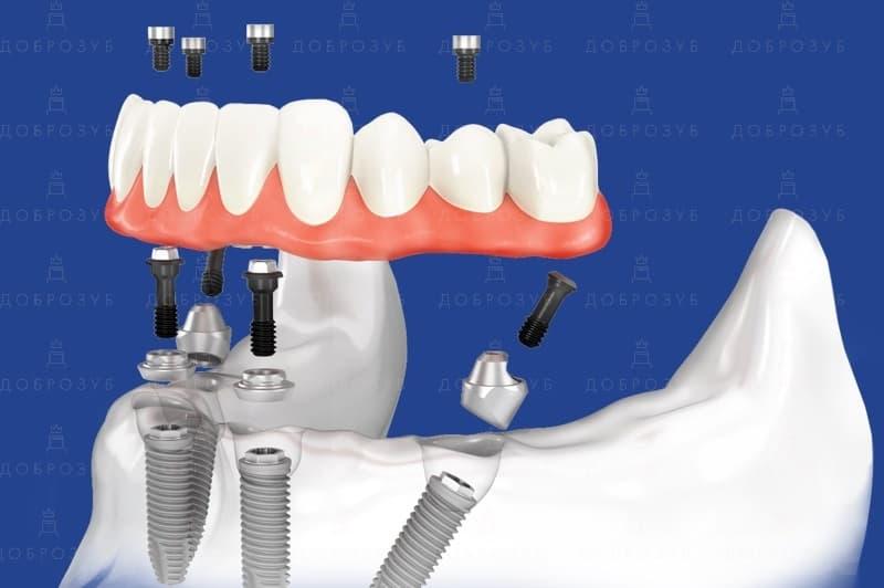 All on 4 | Фото 2 - Стоматологія Доброзуб