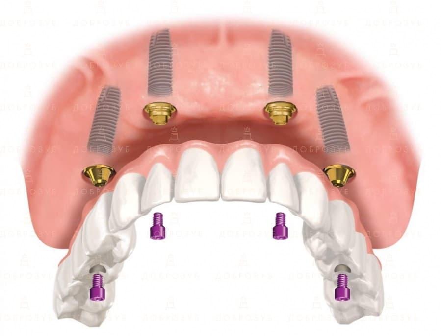 All on 4 | Фото 4 - Стоматологія Доброзуб