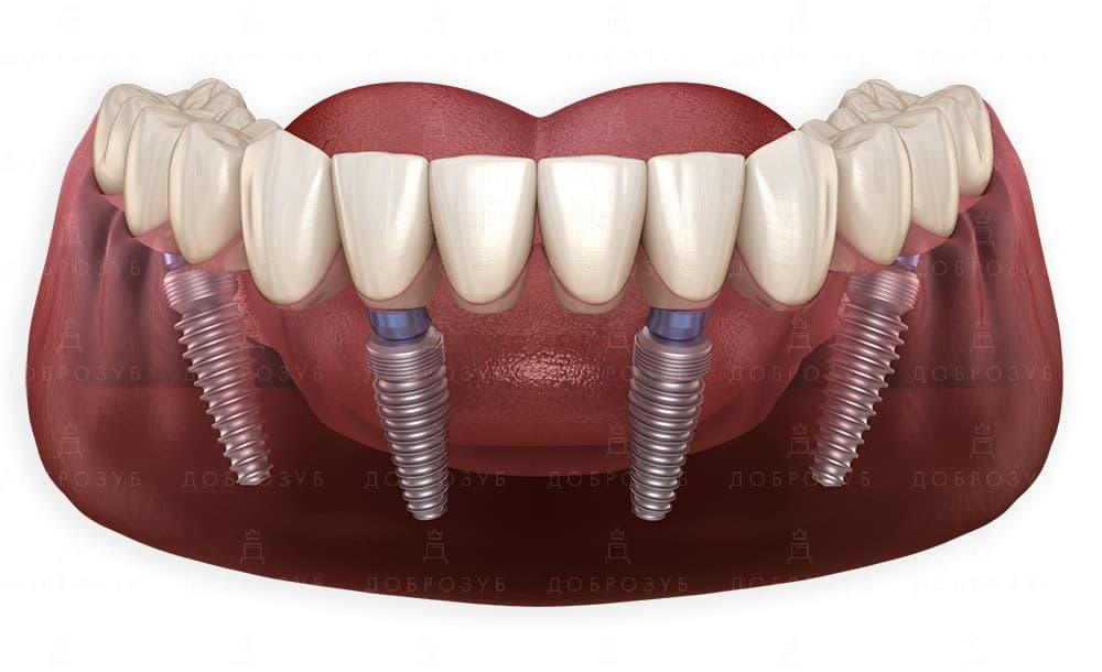 All on 4 | Фото 1 - Стоматологія Доброзуб
