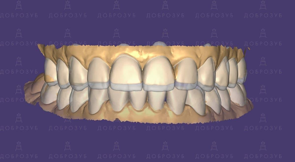 CAD/CAM (изготовления коронок, виниров, накладок при помощи компьютера) | Фото 8 - Стоматология Доброзуб