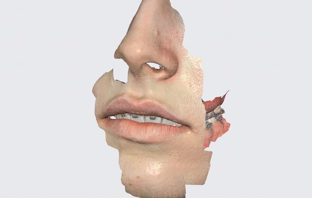 Цифровое моделирование улыбки | Фото 5 - Стоматология Доброзуб