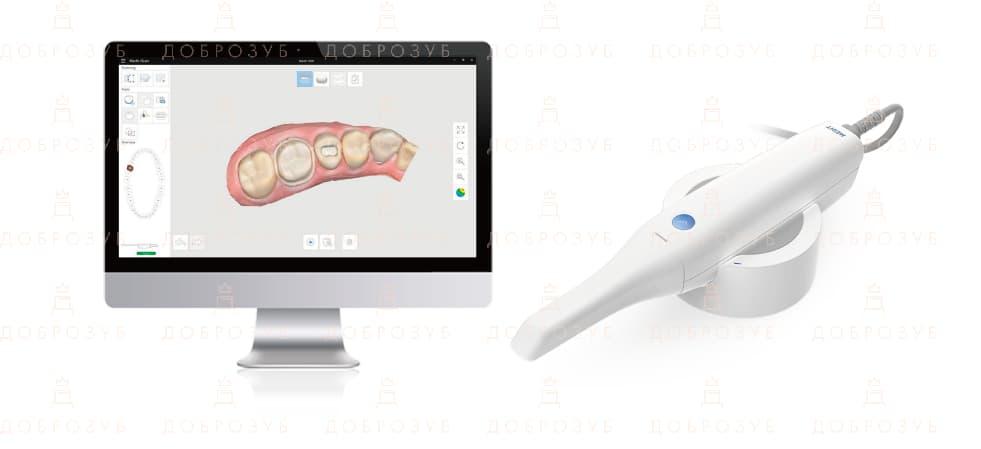 Интраоральная камера | Фото 3 - Стоматология Доброзуб