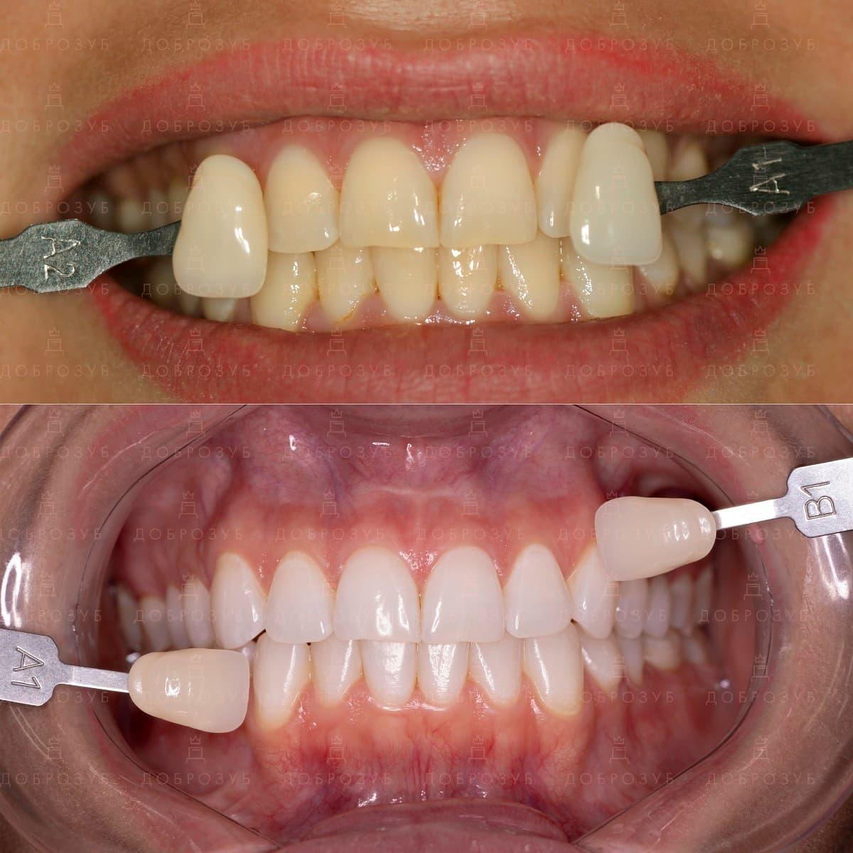 Безопасное отбеливание зубов капами навсегда | Фото 7 - Стоматология Доброзуб
