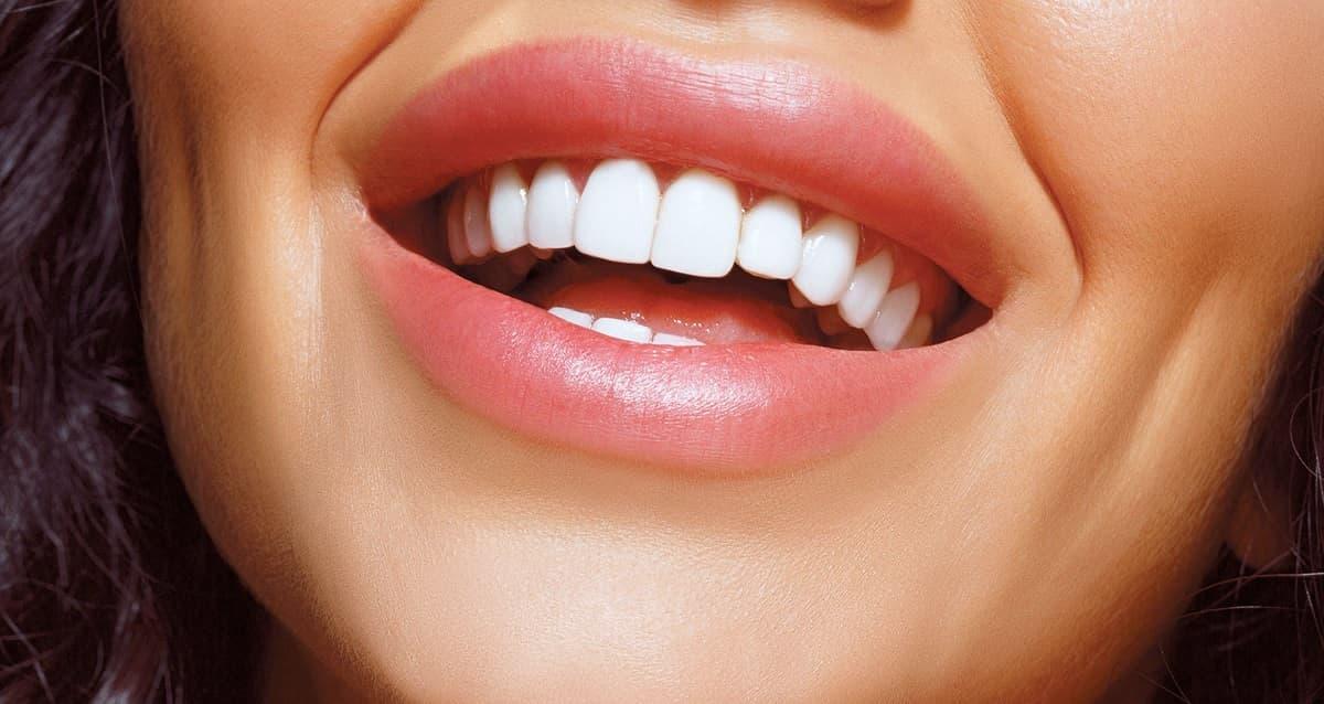 Виниры на зубы | Фото 1